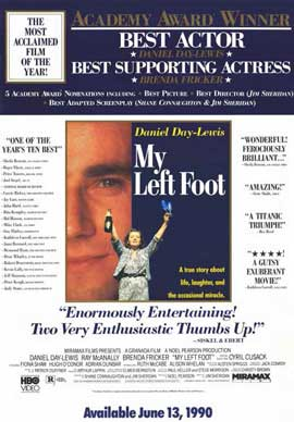 My Left Foot - 11 x 17 Movie Poster - Style B